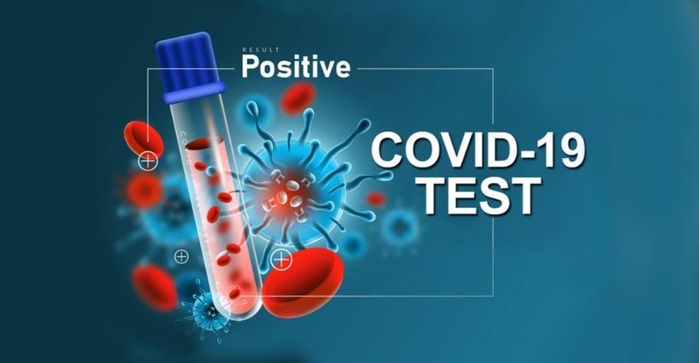 नेपालमा कोरोना संक्रमित संख्या ८२७४ पुग्यो , आज ४२६ संक्रमित थपिए